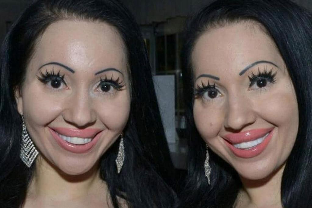 decinque twins big lips