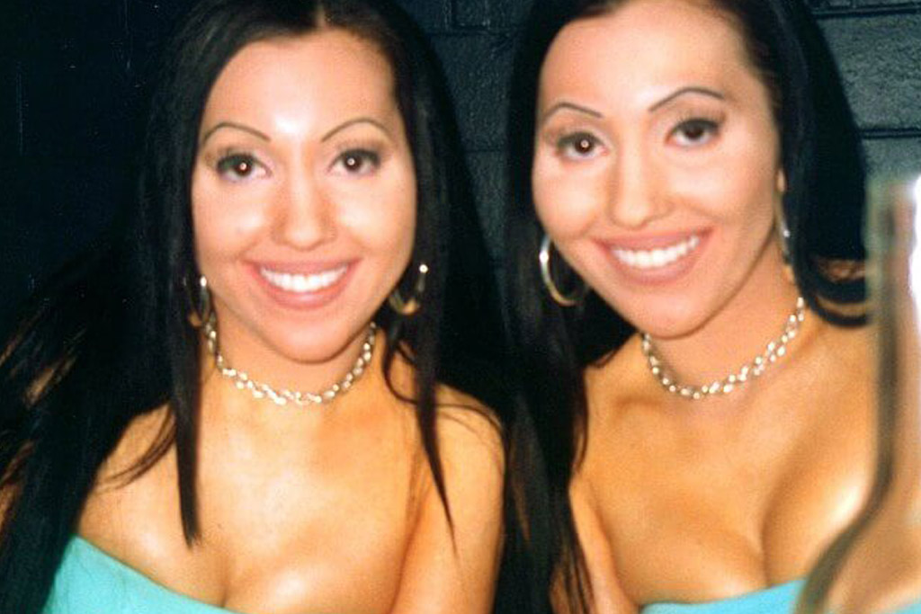 decinque twins plastic surgery procedures