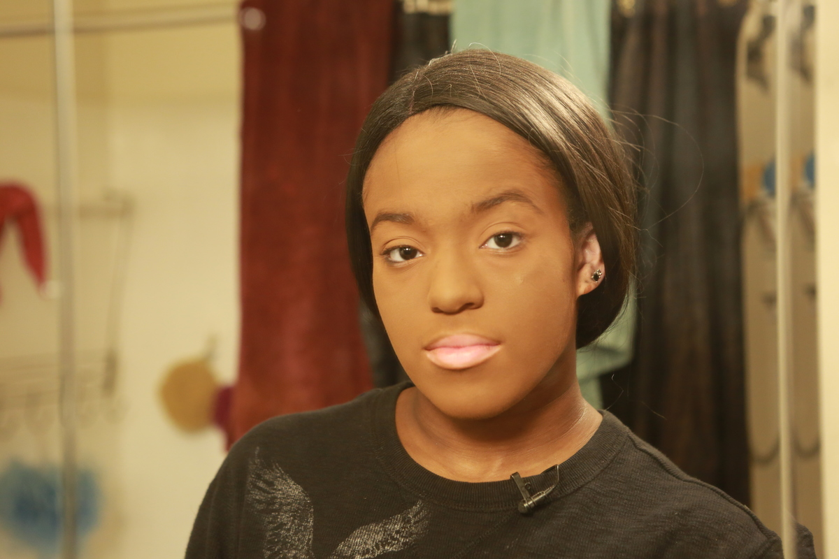 A woman's face is caked in makeup to cover up her vitiligo.