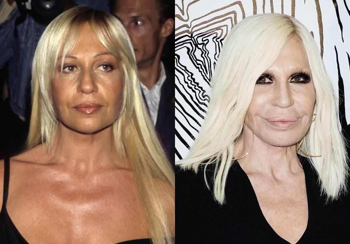 donatella-versache-before-after-plastic-surgery