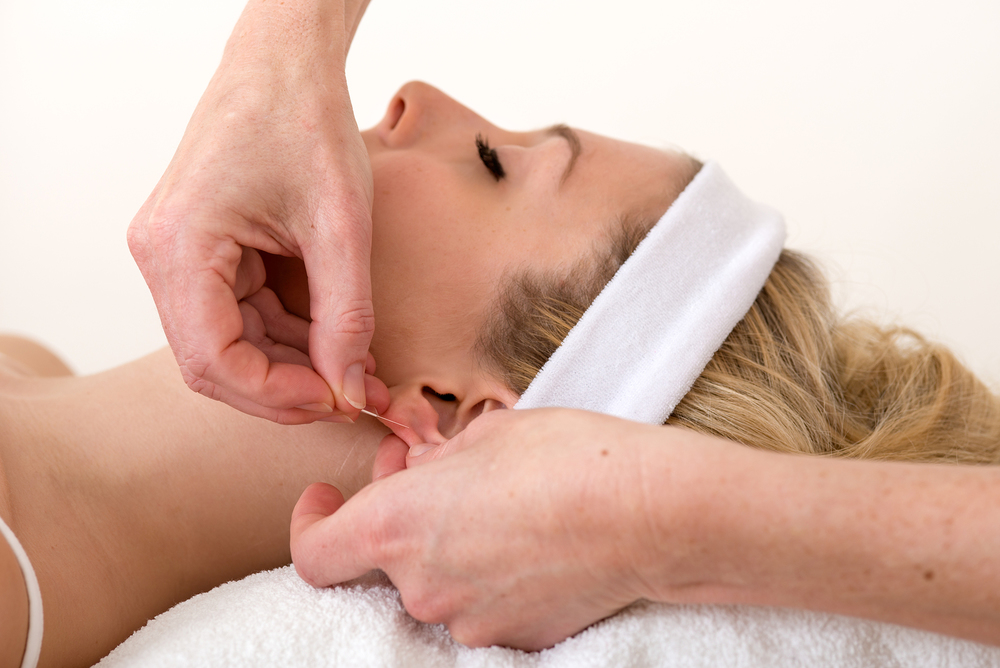 Homeopath Applying An Acupuncture Needle On Ear.