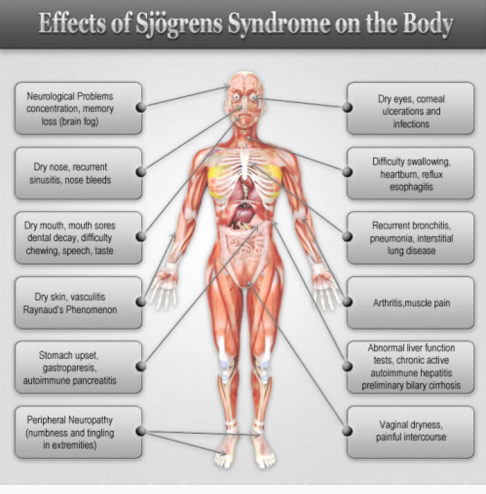 Sjogren's Syndrome
