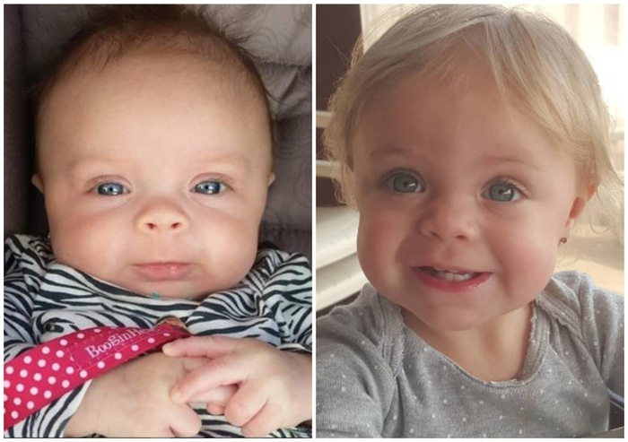 Leah's Daughter Adalyn, Then and Now