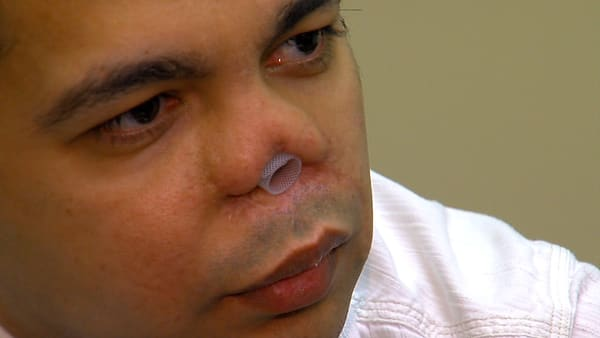 Patient Must Use A Straw To Breathe Out Of His Nose Following Surgery